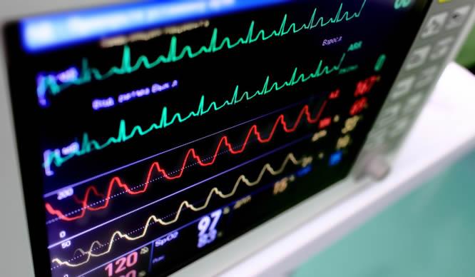 Ein eingeschaltetes EKG-Gerät