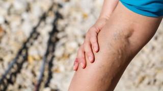 Die Venen am Bein eines Mannes sind hervorgetreten