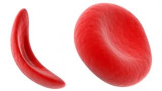 Blutzellen bei Sichelzell-Anämie