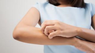 Eine junge Frau kratzt sich am rechten Unterarm