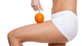 Cellulite ist lästig, aber man kann etwas dagegen tun.