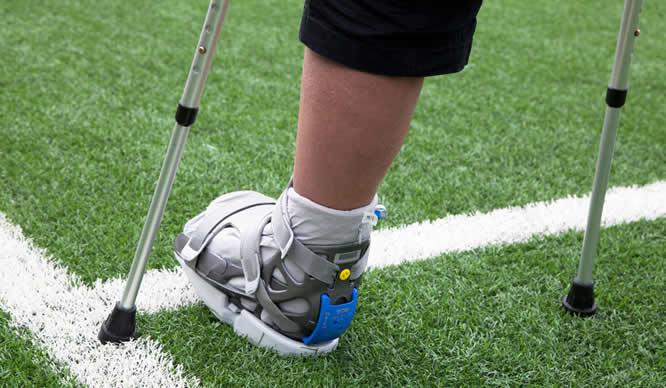 Das eingegipste Bein eines verletzten Sportlers