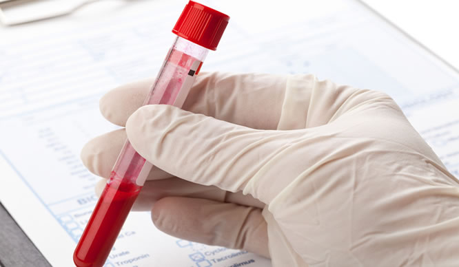 Kann man Krebs per Bluttest erkennen?