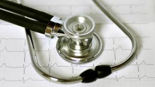 Ein Stethoskop liegt auf einem Kardiogramm