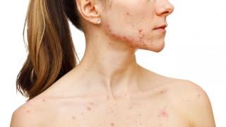 Eine Frau mit Akne an Gesicht und Oberkörper