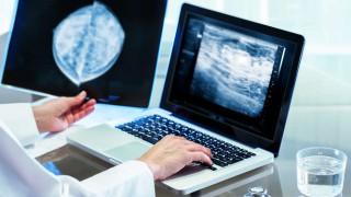 Ein Arzt wertet die Brustkrebs-Untersuchung aus