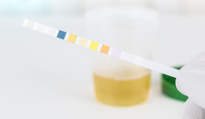Eiweiß im Urin - höchste Gefahr für die Nieren